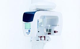 歯科用3D・CTスキャナー
